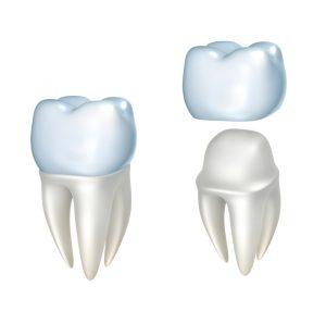 tooth restorations