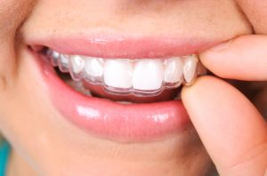 Invisalign aligners in Washington, DC are fully removable.
