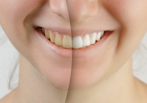 Wondering how you can get ready for Summer? Teeth whitening from your dentist in Friendship Heights is the quickest way to achieve the results you're looking for.
