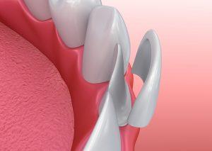 porcelain veneer applied to tooth